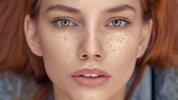 vanity-cosmetics-products-freckles-discolouration